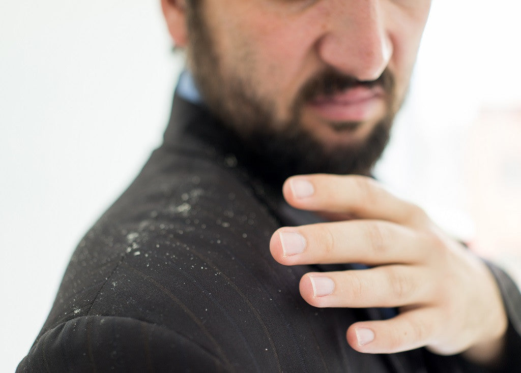 What is beard dandruff and how to treat it