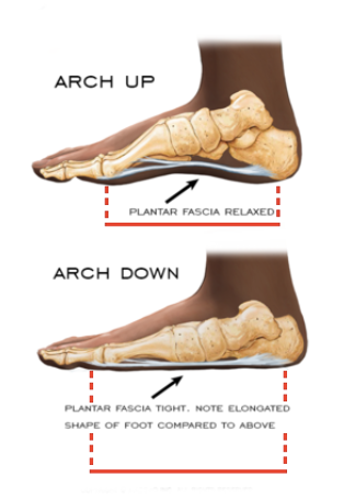 Example of relaxed & tight plantar fascia