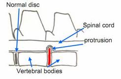 Intervertebral Disc Disease (IVDD) Diagram