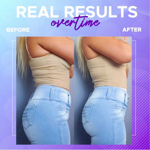 real butt lifting results over time