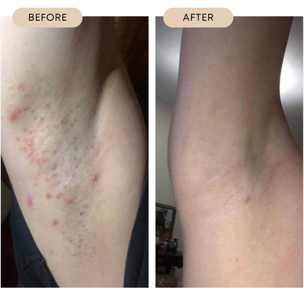 Before and After Razor Burn