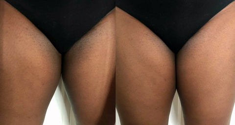 Before and After Progress Of Women's Bikini Line