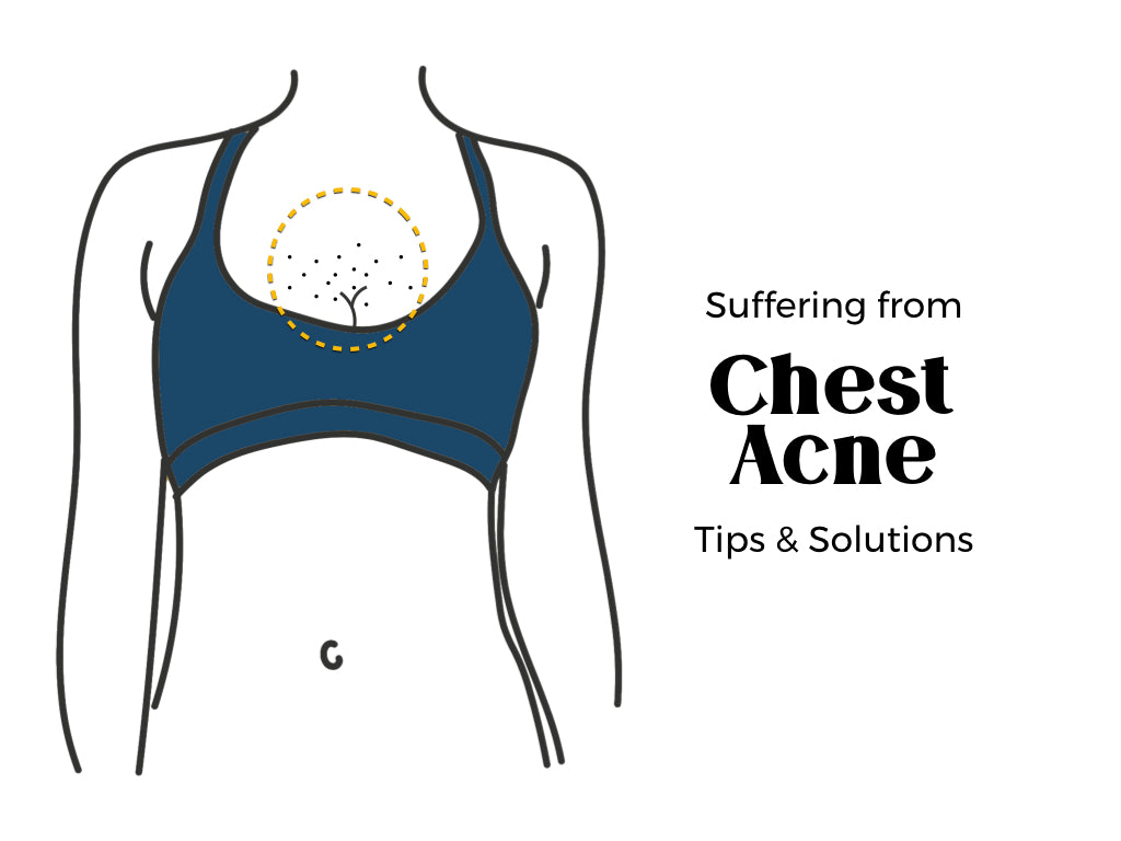 Chest Acne Treatments and Solutions