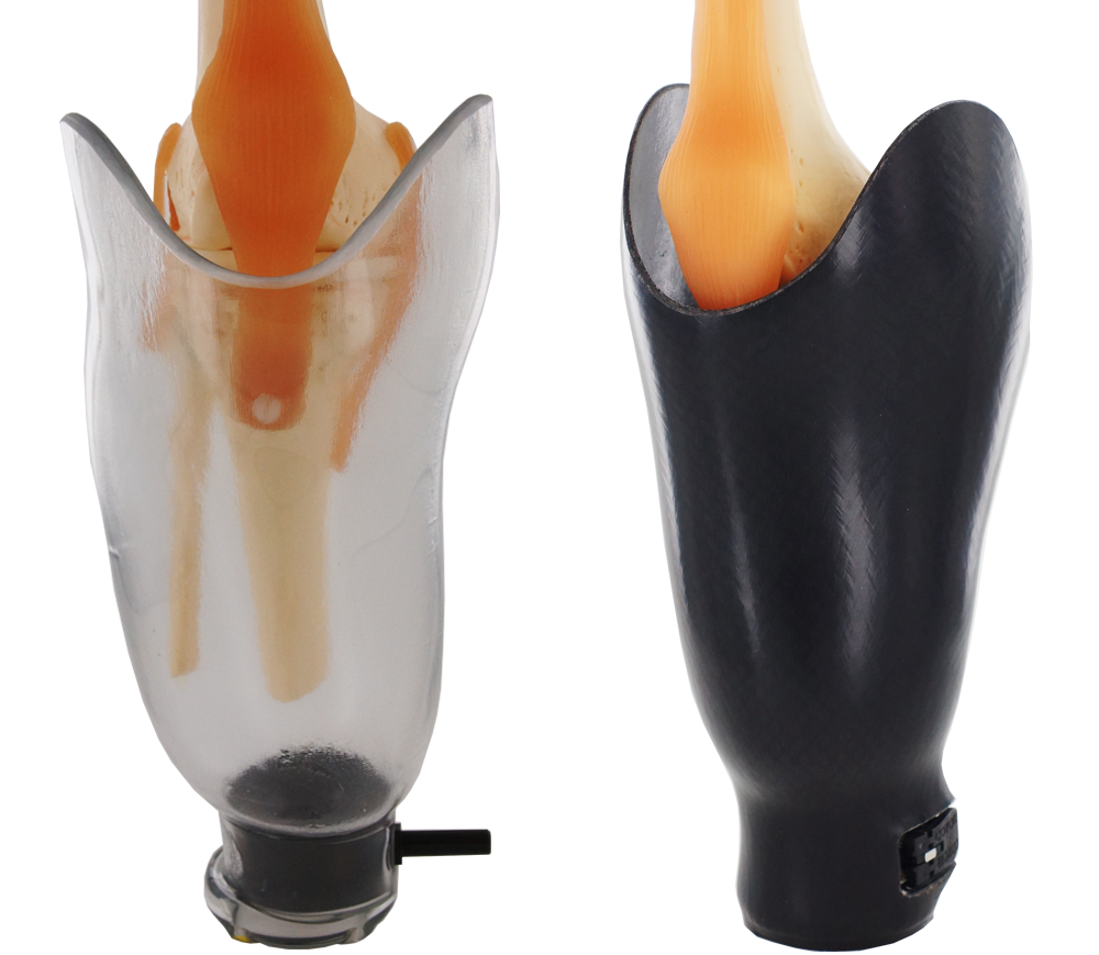 StabileFlex Transtibial Socket Design