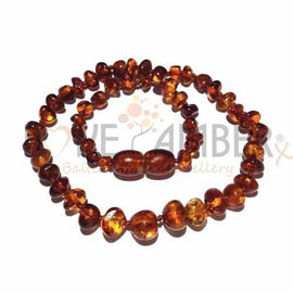 Adult Brandy Snap Cognac Baltic Amber Necklace