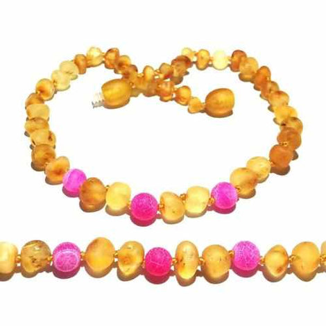 Adult Nurture Raw Honey Pink Dragon Agate Baltic Amber Anklet Love Amber X
