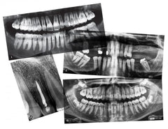 Dental X-Rays|Rayons X - dentaire