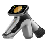 Luna Plus handheld retinal camera