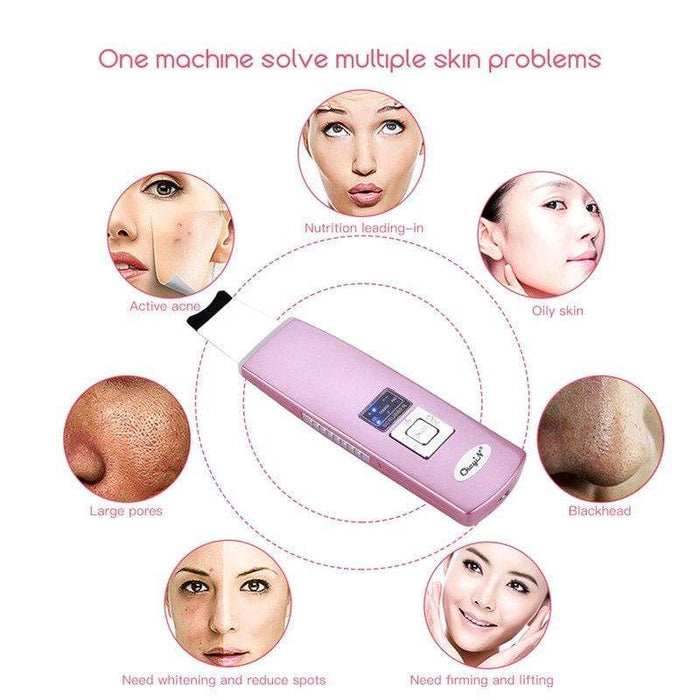 MASK38 [Ultrasonic] Ion Skin Scrubber Blackhead Removal Face Skin Peeling Extractor Skin Facial Cleaner Rejuvenation Beauty Device