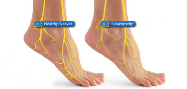 Diabetic Neuropathy CAN Be Treated!