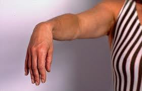 Tips for Treating Diabetic Nerve Pain