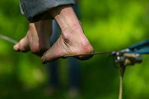 Diabetic Peripheral Neuropathy Can Trip You Up