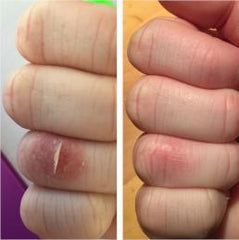 Before and after using xmaease cream for cut on dry skin on hand