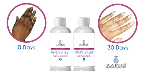 Hands N Feet Gell Corrector For Hydroquinone Damaged Digits. 16oz