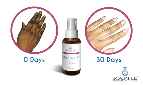 Private Label Best Skin Bleach Regimen For Hands, Feet Treatment, Knuckles, Elbows and Heels