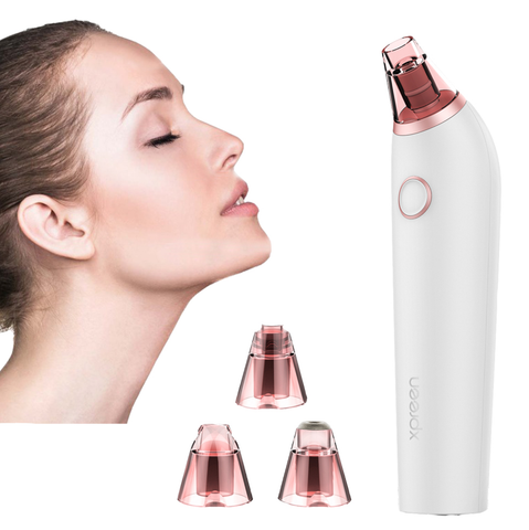 4-in-1 Vacuum Blackhead Remover & Pore Cleaner