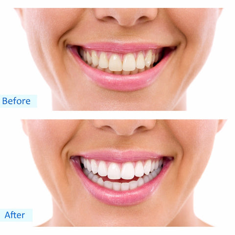 Radiant Bright Teeth Whitening Home Kit
