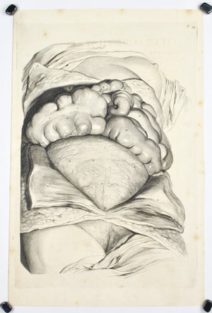 1698 - 1750 Postmortem Autopsy Female Body Internal Organs Engraved Print