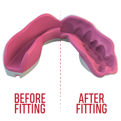 SAFEJAWZ® Extro Series Self-Fit 'Pink Fangz' Mouthguard - SAFEJAWZ gum shield