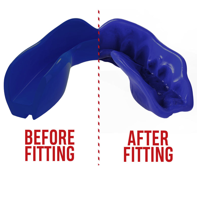 SAFEJAWZ® Intro Series - Blue - SAFEJAWZ gum shield