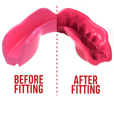 SAFEJAWZ® Intro Series - Pink - SAFEJAWZ gum shield