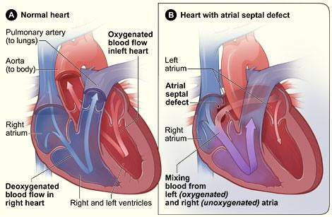 atrial septal defect, ASD