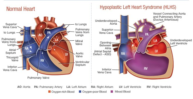 hypoplastic left heart syndrome, hlhs