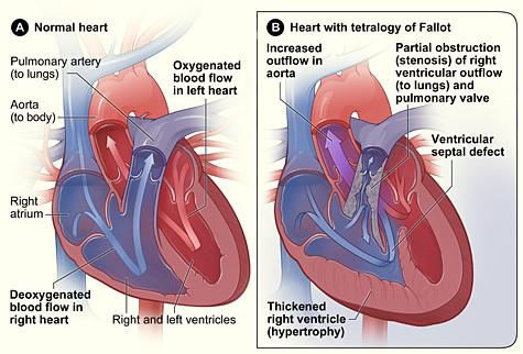 tetralogy of fallot, TOF