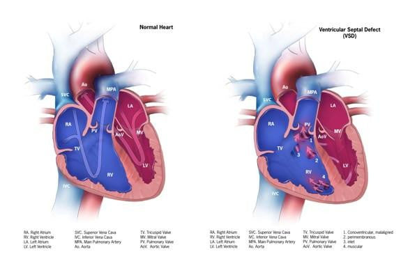 VSD, ventricular septal defect