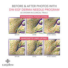 Load image into Gallery viewer, EASYDEW - DW-EGF Derma Needle 3000 Shot (4pcs)
