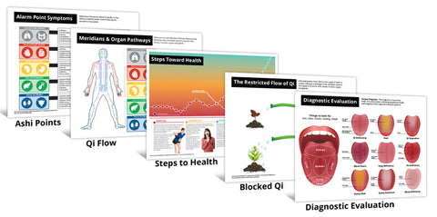 Acupuncture Laminated Charts - Ashi, Blocked Qi, Qi Flow, Steps of Care