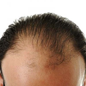 Remedies for Thinning Hair