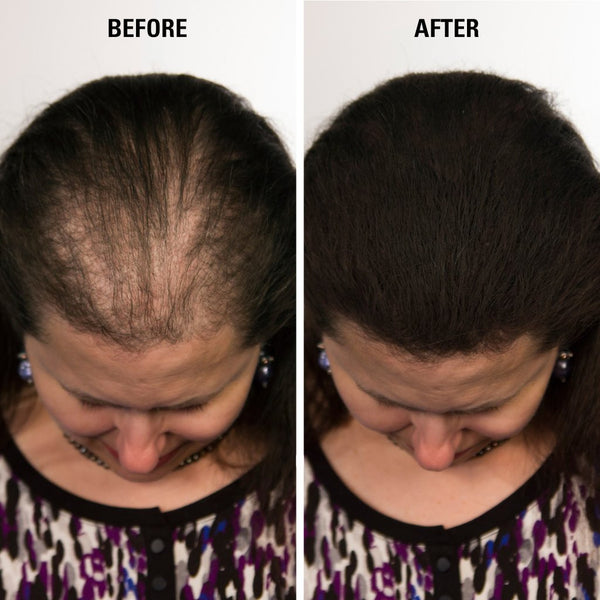 Hair Building Fibers Kit For Women Amp Men With Thinning