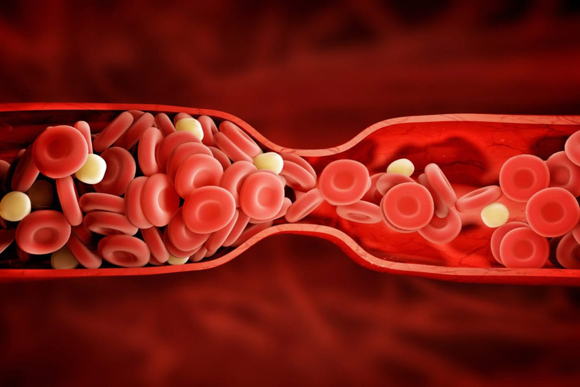 Blood Clots: 6 Things You Need to Know