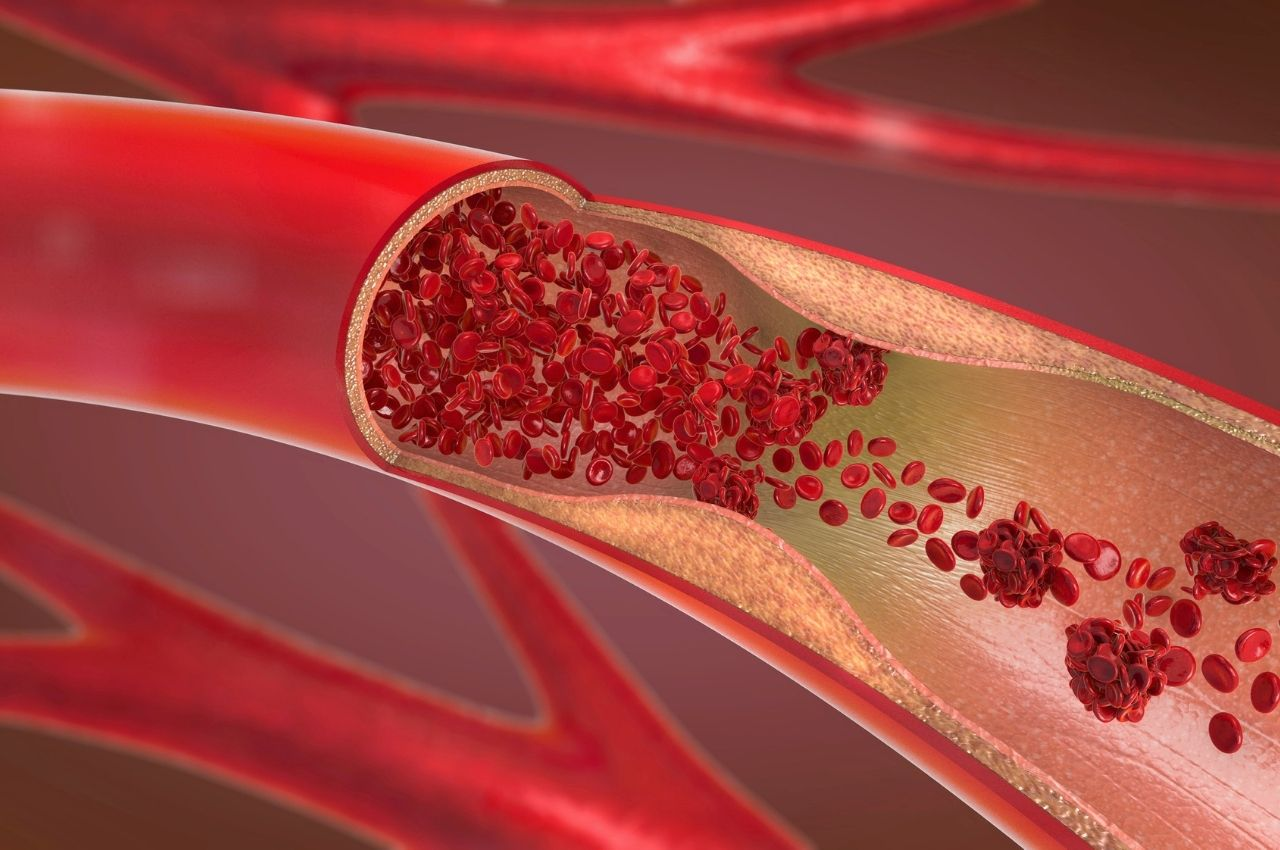 Know Your Risks and How to Prevent Thrombosis