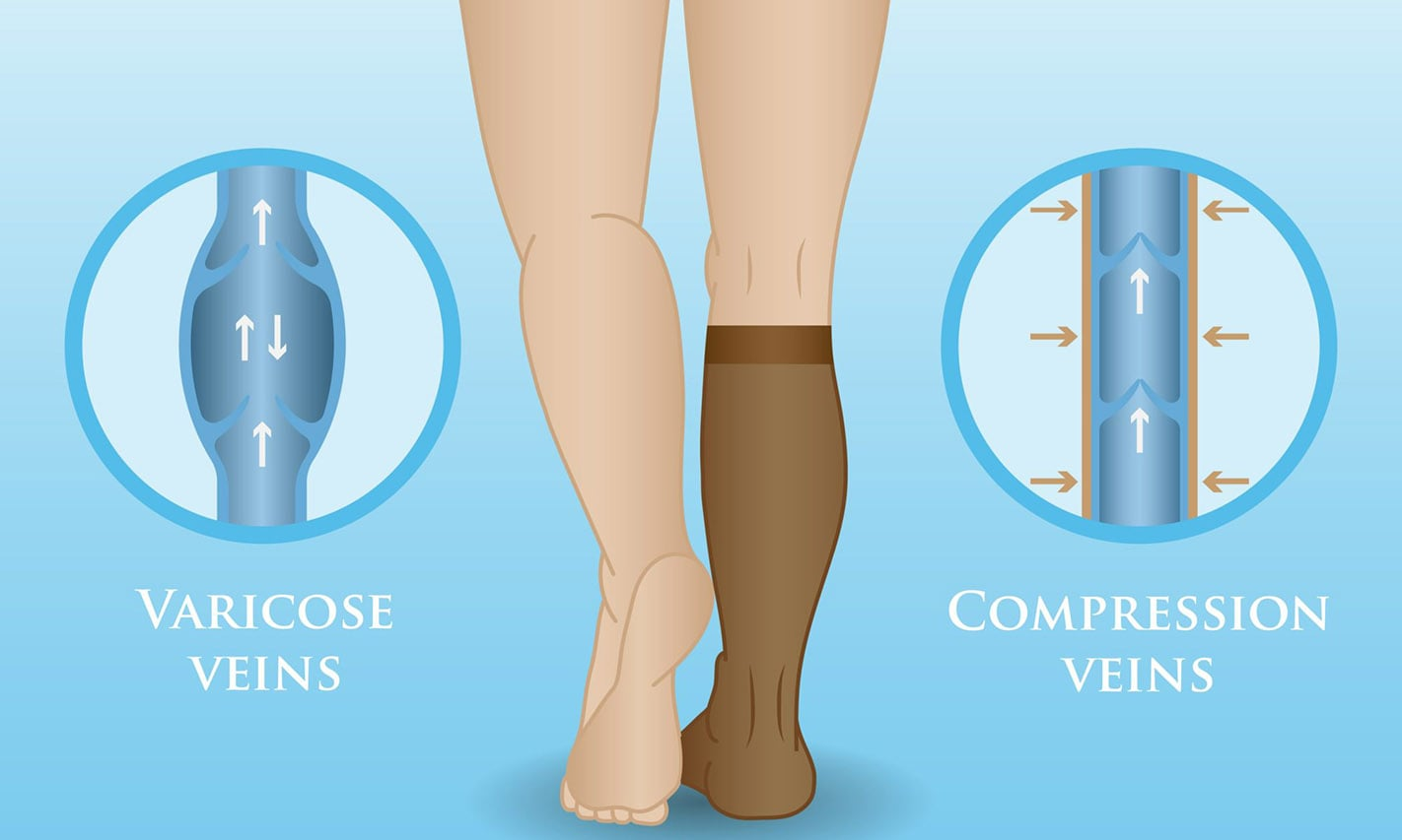 Why should I wear compression socks or compression stockings on shift as a nurse