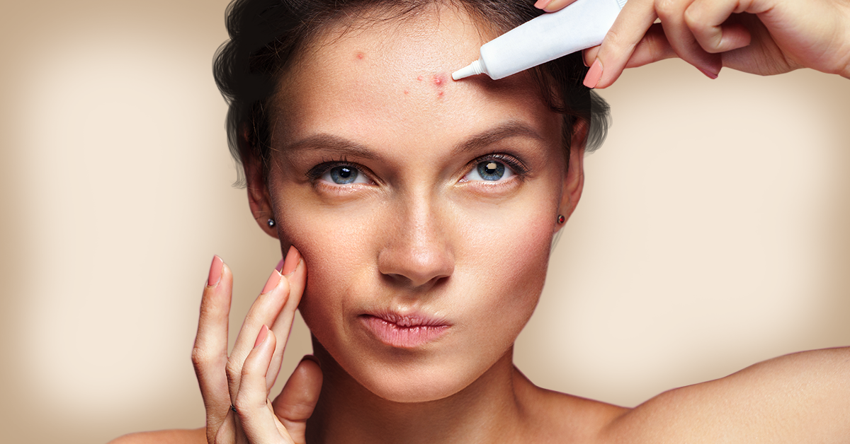 Types of Acne and How To Deal With Them