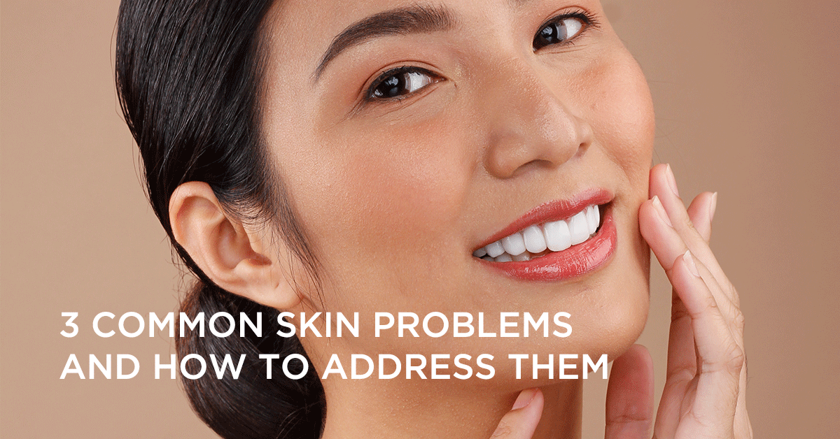 3 Common Skin Problems and How To Address Them