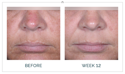 Clinical study results before and after 12 weeks participant b