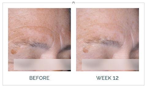 Clinical study results before and after 12 weeks