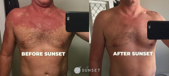 Sunset Alcohol Flush reaction