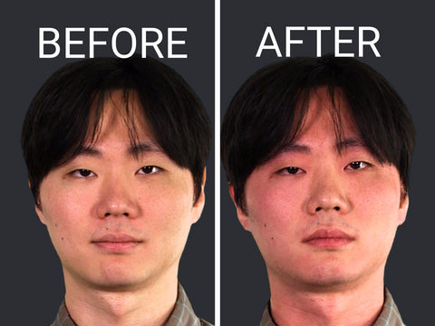 Asian Glow before and after alcohol