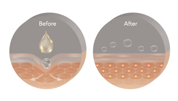 Hyaluronic Acid on the Skin - Before / After