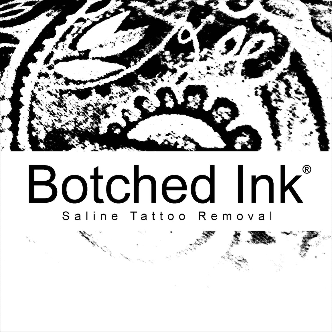 Botched Ink® Saline Tattoo Removal Course Workshop Training