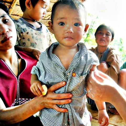 Help A Malnourished Child in Burma