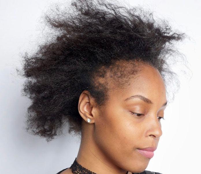Hairstyles You Should Try When Experiencing Hair Loss Around Your Edge My Fluffy Puffs