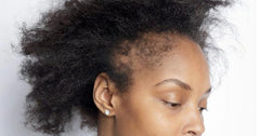 Losing edges and nape hair loss