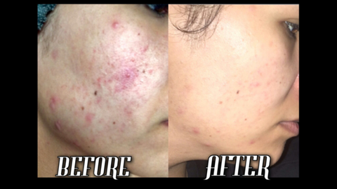 Before and after Nerium