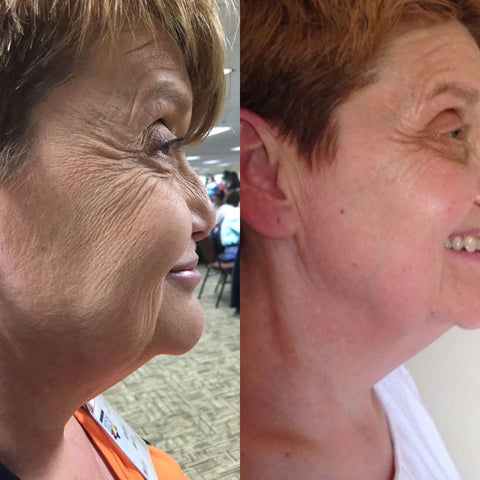 Nerium anti wrinkle cream before and after shots
