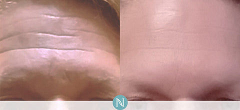 results with Nerium day and night cream